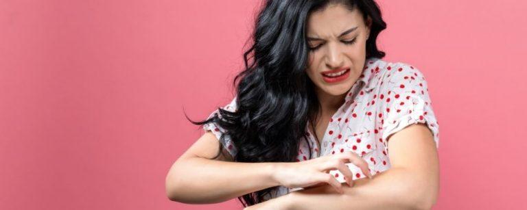 Vrouw met huidproblemen krabt aan arm