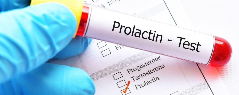 Een prolactine testbuisje die vastgehouden wordt door een dokter