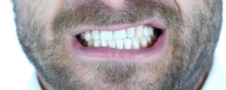 Man die tanden knarst als gevolg van stress